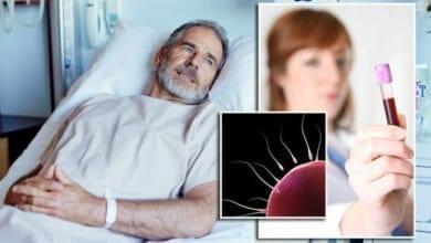 اسباب الدم في السائل المنوي