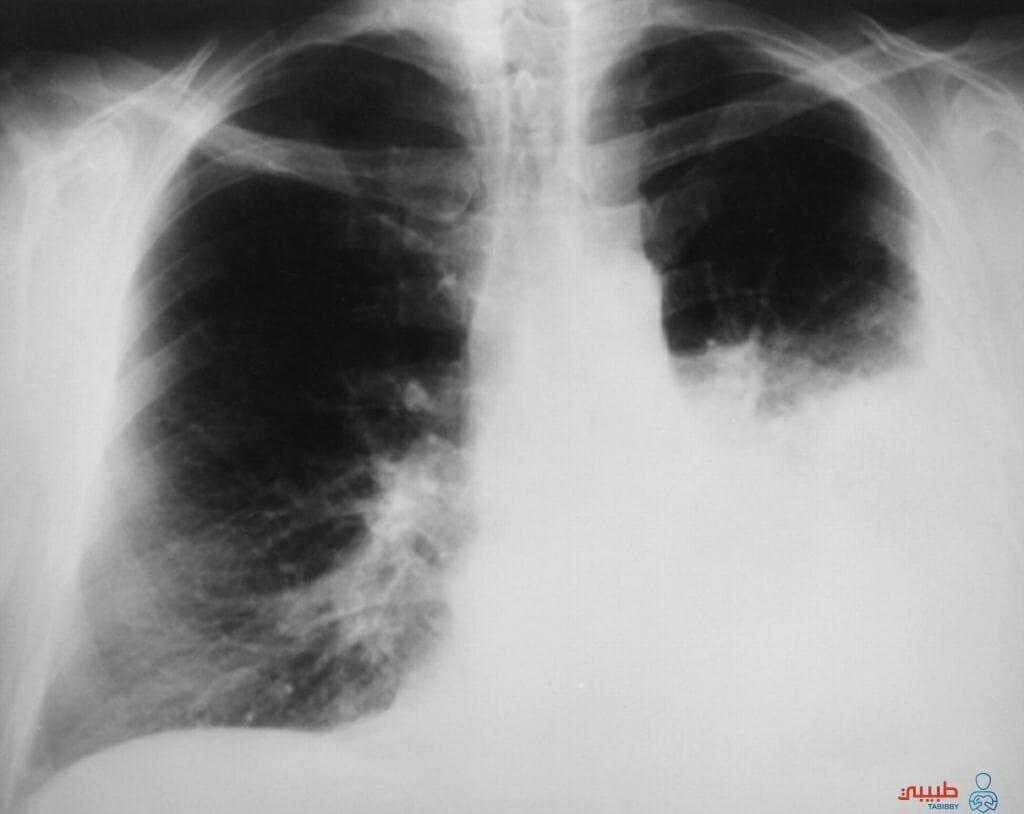 اعراض انكماش الرئة