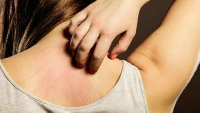الطفح الجلدي لمرض الإيدز وطرق الوقاية