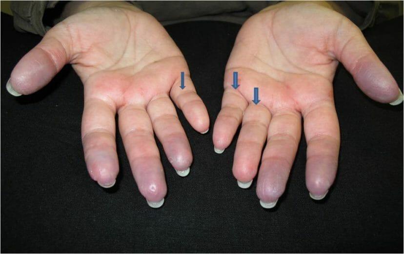 جلطة اليد تعرف على اسبابها وبعض طرق الوقاية طبيبي