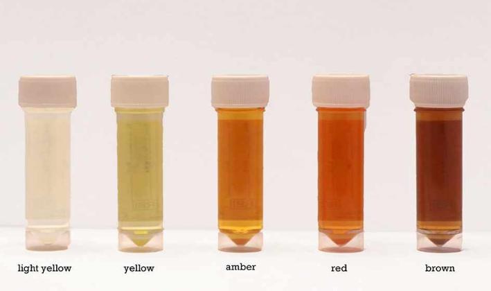 أصفر أحمر أخضر اكتشف المرض 7