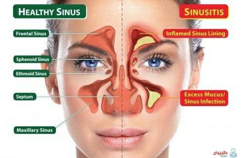 طرق الوقاية من التهاب الجيوب الانفية