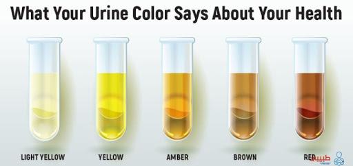 اختلاف لون البول و دلالتة