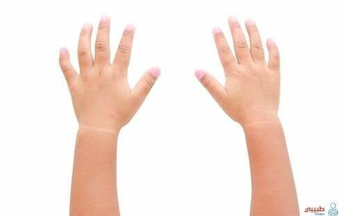 اسباب تورم الأصابع فى الشتاء