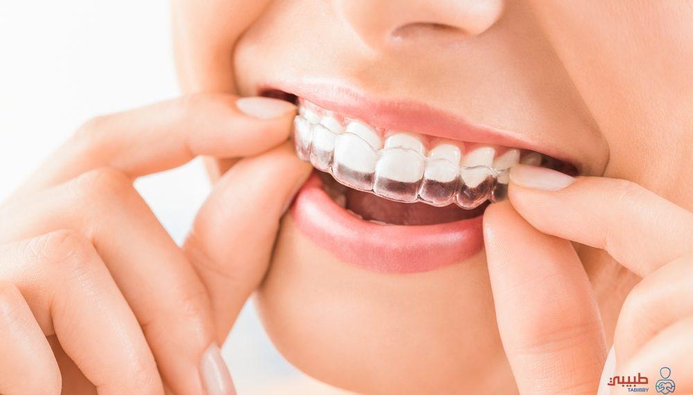 تثبيت الأسنان بعد إزالة التقويم