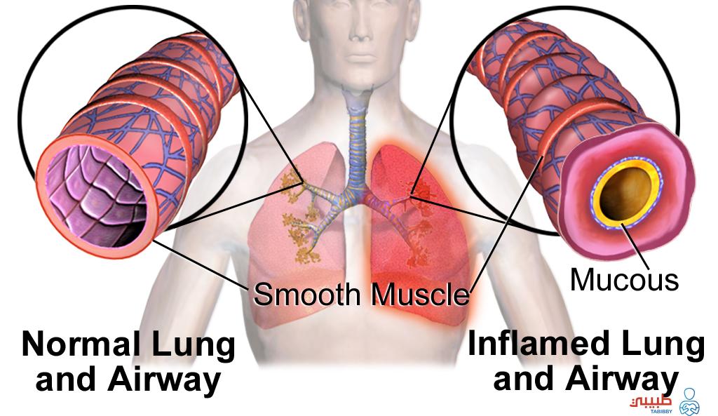 أعراض انكماش الرئة