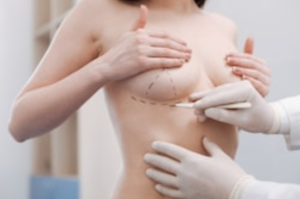 ترميم الثدي