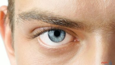 جلطة العين