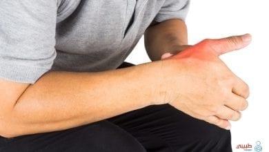 علاج تمزق الأربطة في اليد