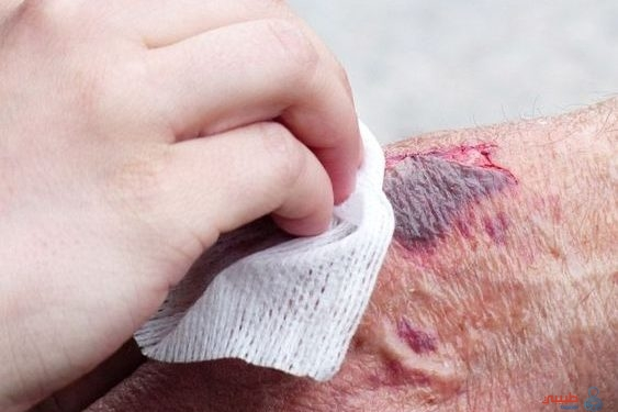 كيفية علاج الخدوش والجروح