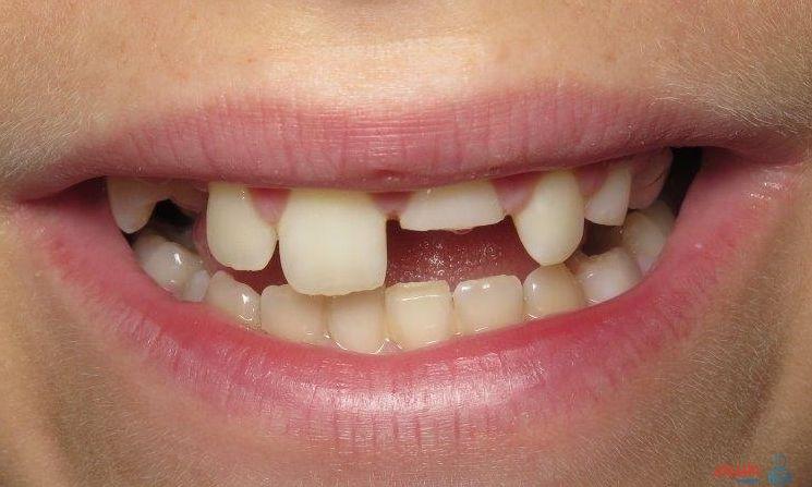 الأسنان المكسورة