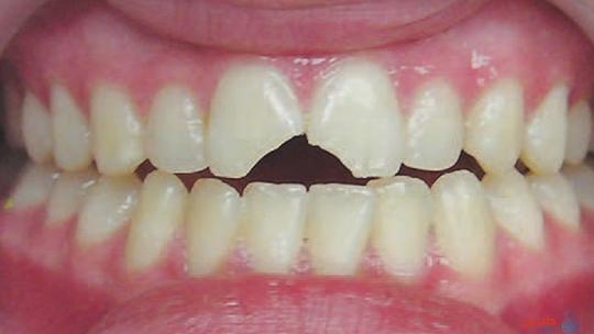 طرق علاج الأسنان المكسورة