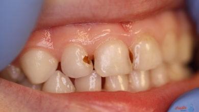علاج تسوس الأسنان بالليزر