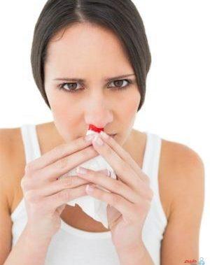 اسباب نزيف الانف اثناء الحمل