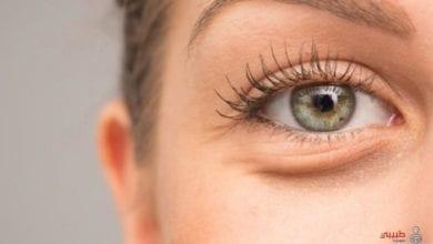 امراض تكشفها العين