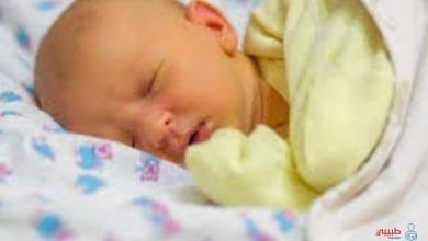 الصفراء عند الرضع