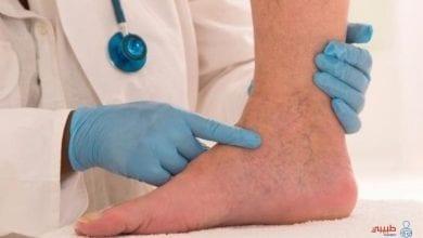 أعراض جلطة القدم