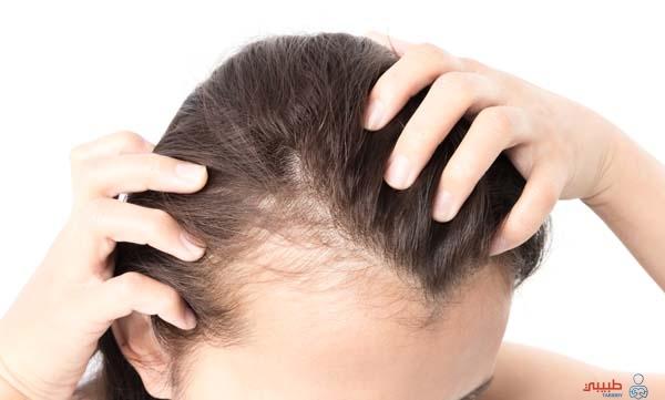 كيف يتم تشخيص تساقط الشعر