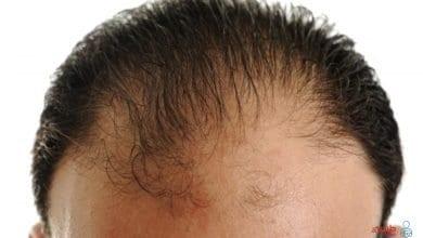 أسباب تساقط الشعر من الأمام