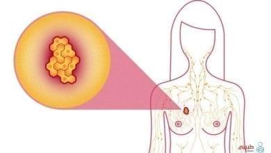 أعراض سرطان الثدي المبكر