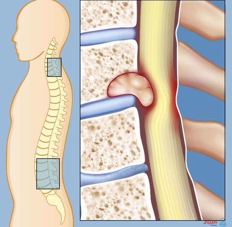 أعراض سرطان العمود الفقري ما هي وما هي أنواعه وكيف يتم تشخصيه