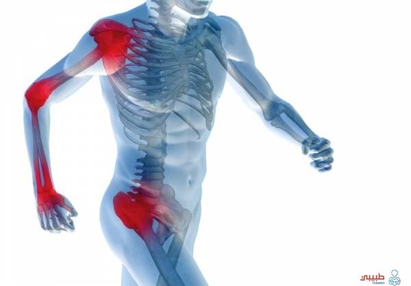 علاج التهاب العضلات