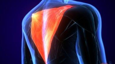 أعراض التهاب العضلات