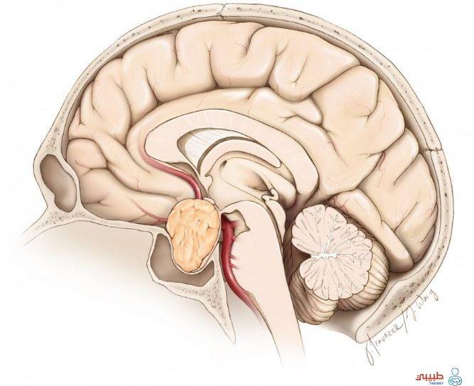 أعراض ورم الغدة النخامية تعرف على ابرزها وأهم طرق العلاج طبيبي