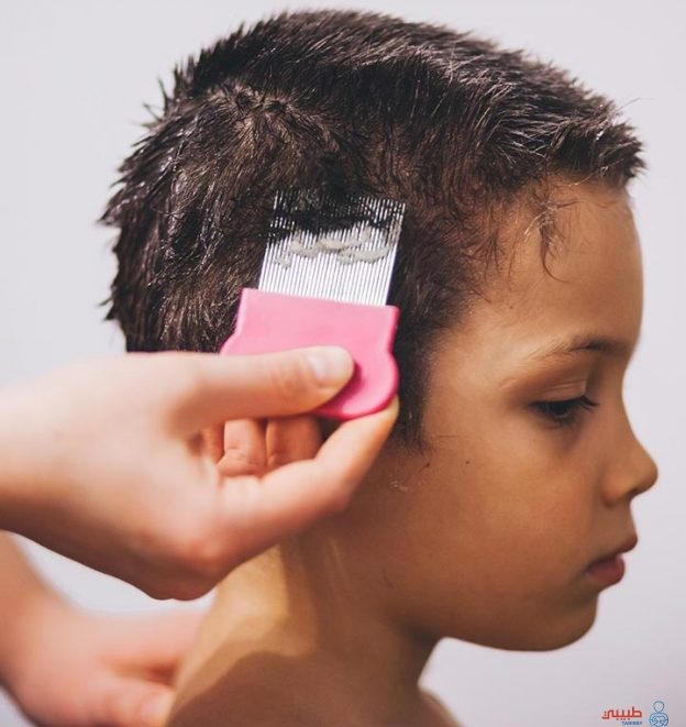 اسباب تساقط الشعر المرضية عند الاطفال 7 سنوات