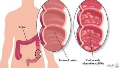 أعراض التهاب القولون التقرحي