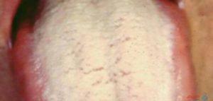 علاج فطريات اللسان البيضاء