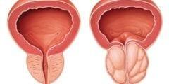 أسباب تضخم البروستاتا و أضرارها على الإنجاب والانتصاب عند الرجال