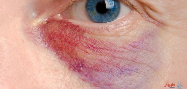 علاج كدمات العين